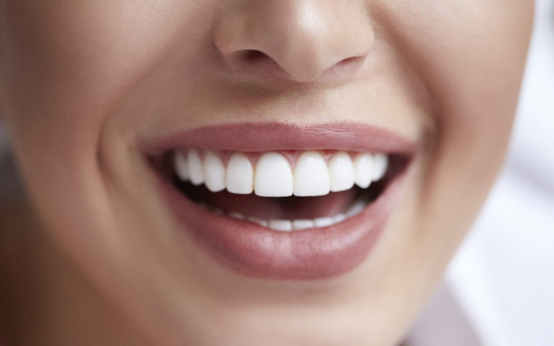 Dental Bonding: A Cost-Efficient Way To A Better Smile