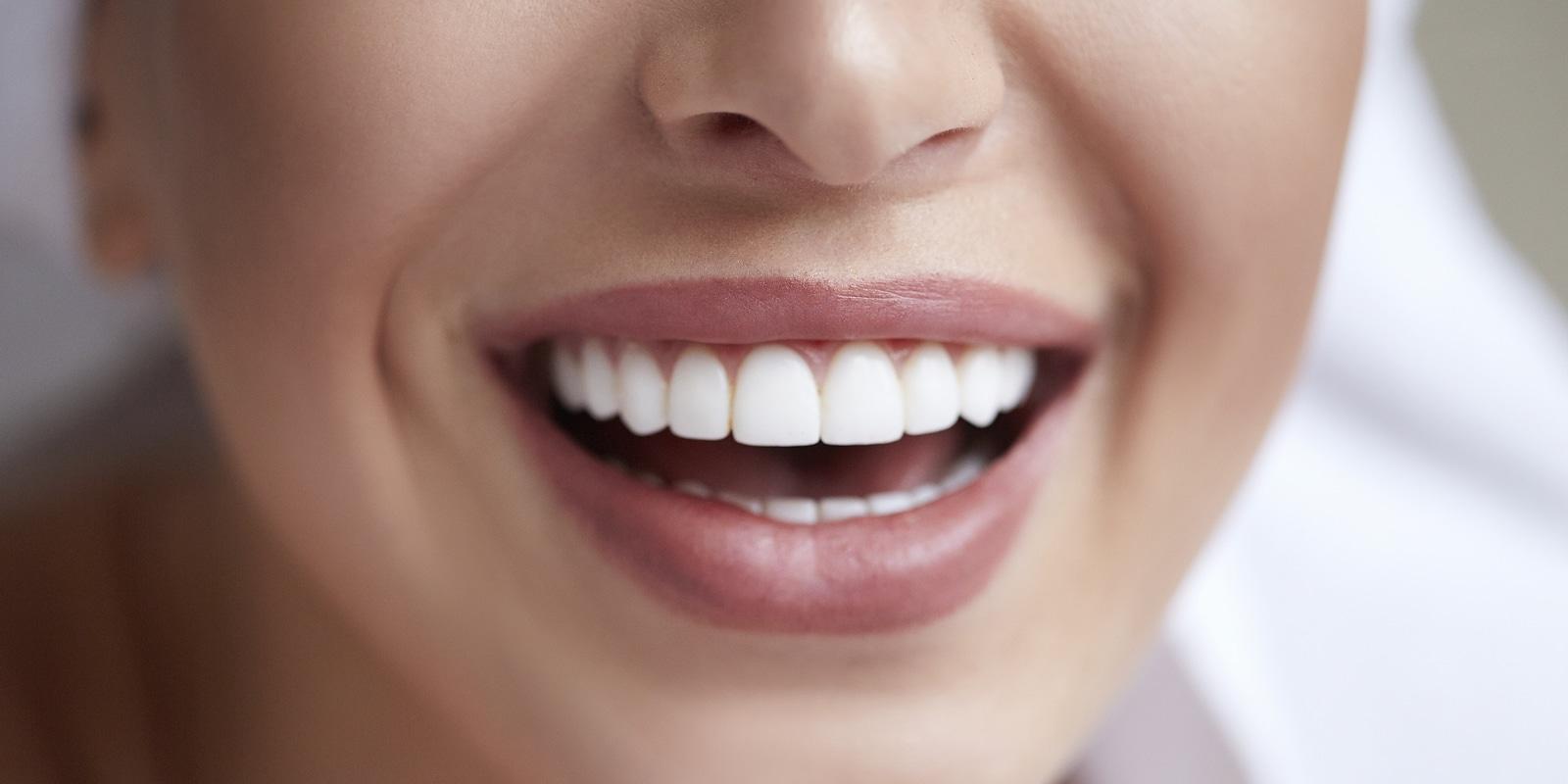 white teeth by dana dental