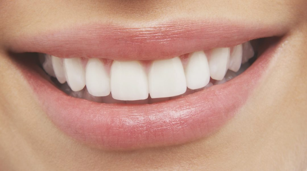 Too Shy About Your Gums? Try Gum Reduction in Aurora!