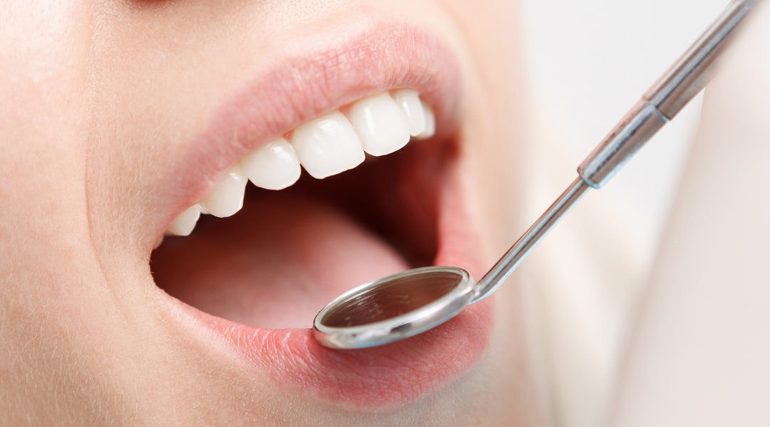 Save Your Teeth With Quality Cavity Treatment in Aurora